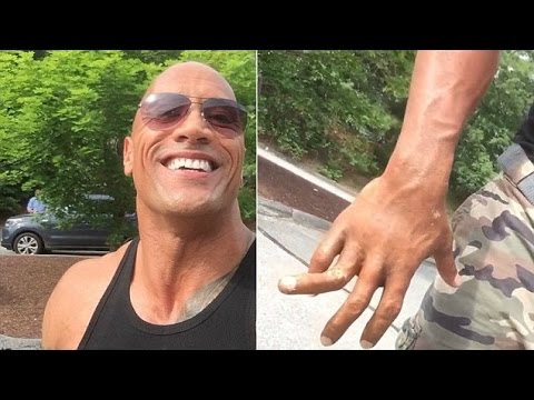 Damn: The Rock pranks viewers with broken finger