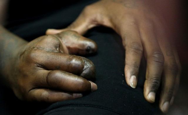 Jason Pierre-Paul speaks & reveals hand to media (*Viewer Warning*)