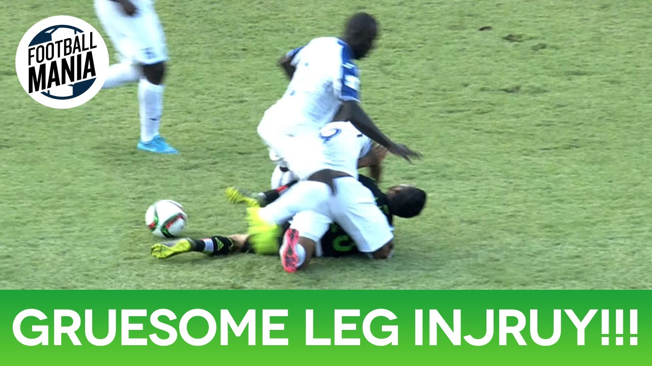One of the worst leg injuries you will ever see in any sport