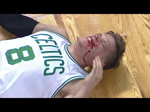 Boston's Jonas Jerebko gets bloody after James Harden foul