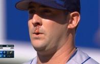 Matt Harvey pitches through a nose bleed