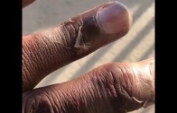 Kam Chancellor shows what happened to his fingers from the Vikings game