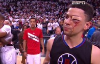 Austin Rivers looks like he's been in a boxing match post Game 6
